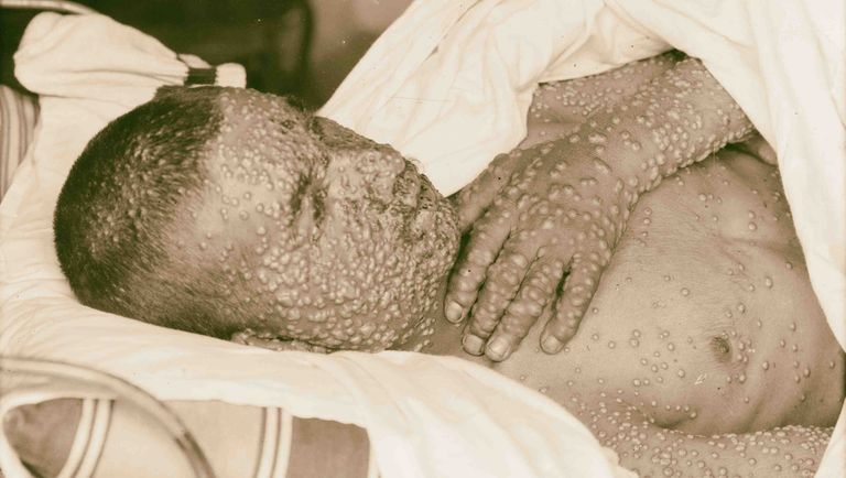 smallpox-1898-middle-east-news-photo-1582272777